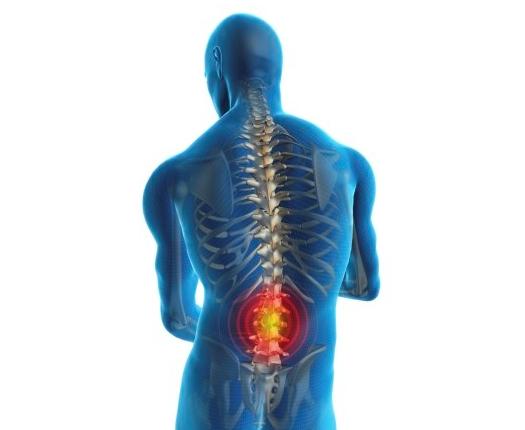Imate li problema sa bolovima u leđima?